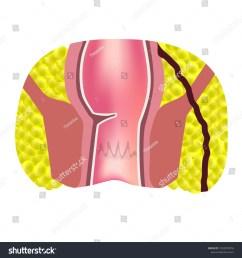 types of fistulas of the rectum paraproctitis anus abscess of the rectum  [ 1500 x 1600 Pixel ]