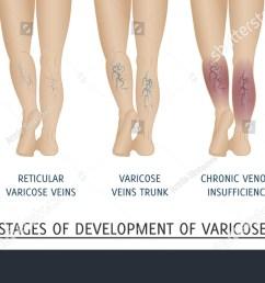 types of varicose veins in women stages of development of varicose veins vector illustration [ 1500 x 850 Pixel ]