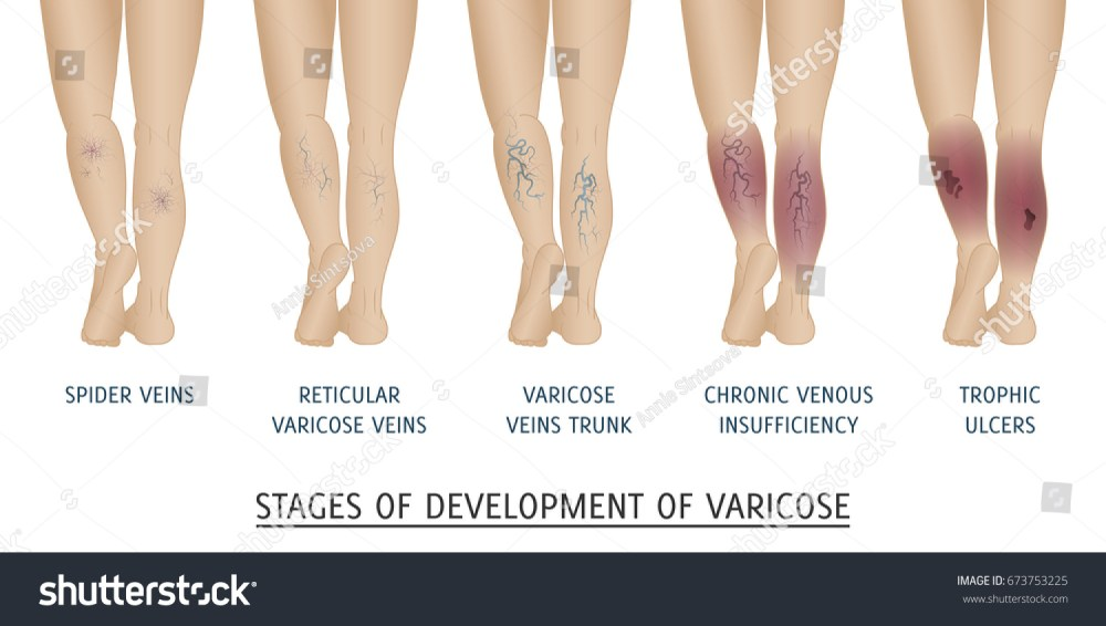 medium resolution of types of varicose veins in women stages of development of varicose veins vector illustration