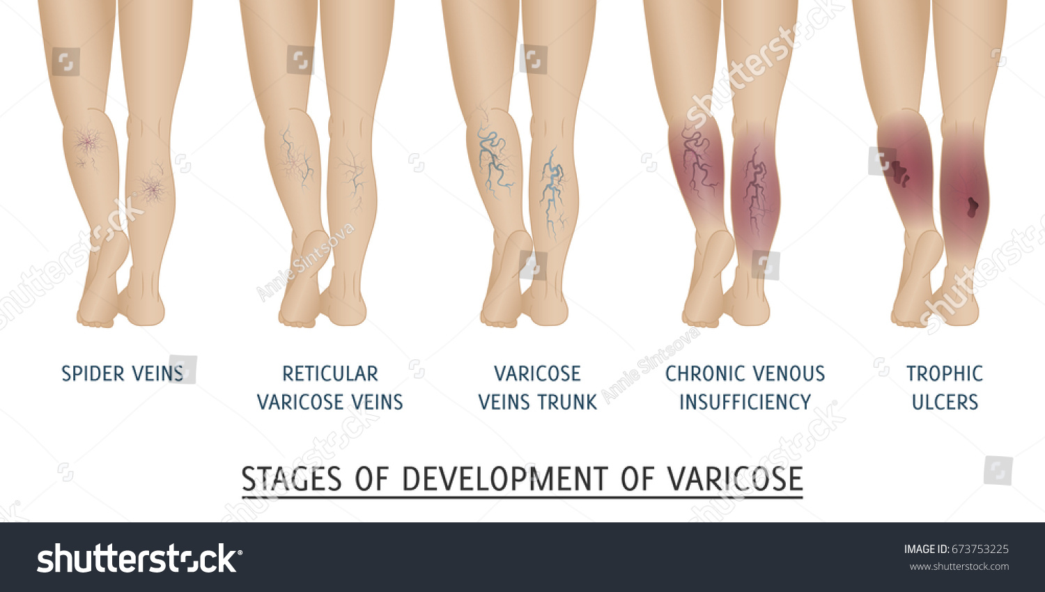 hight resolution of types of varicose veins in women stages of development of varicose veins vector illustration