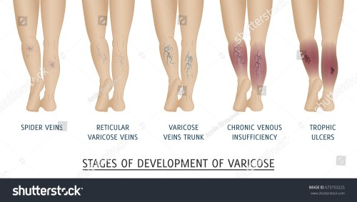 small resolution of types of varicose veins in women stages of development of varicose veins vector illustration