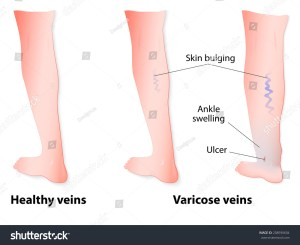 Varicose Veins Twisted Enlarged Veins Blue Stock Vector