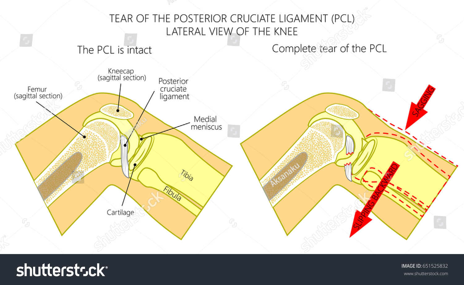 hight resolution of vector illustration anatomy of a knee joint with healthy and torn posterior cruciate ligament side