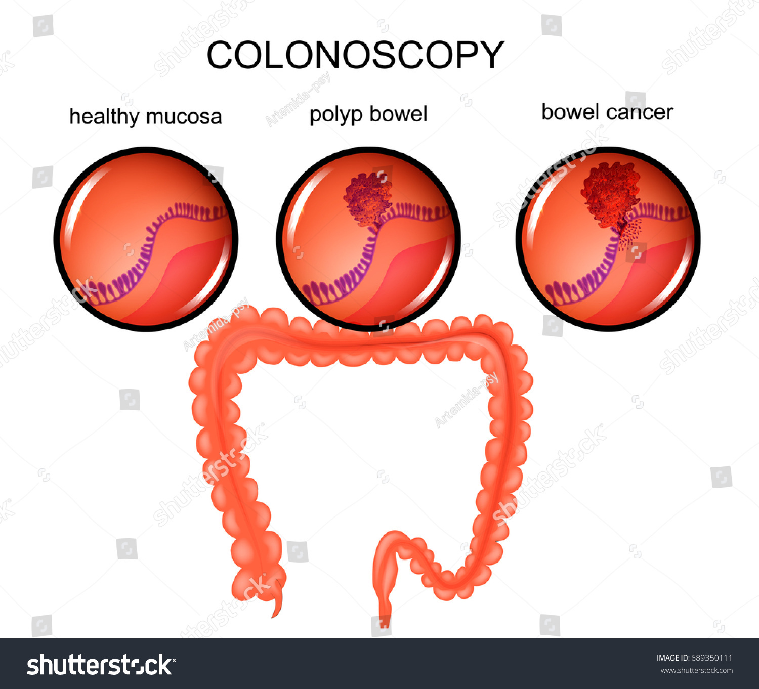 hight resolution of vector illustration of a colon polyp and cancer