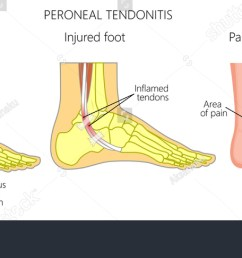 vector illustration of peroneal tendon injuries peroneal tendonitis inflammation of peroneal tendons lateral [ 1500 x 684 Pixel ]