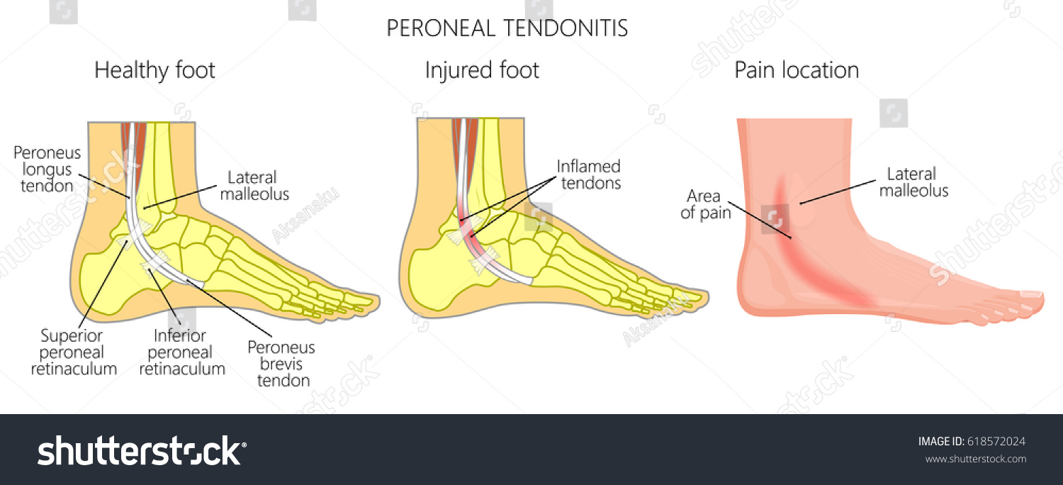 hight resolution of vector illustration of peroneal tendon injuries peroneal tendonitis inflammation of peroneal tendons lateral