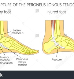 vector illustration of peroneal tendon injuries rupture of the peroneus longus tendon lateral ankle [ 1500 x 940 Pixel ]