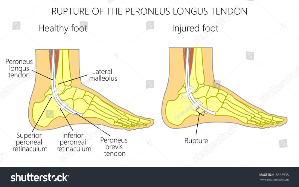 medium resolution of vector illustration of peroneal tendon injuries rupture of the peroneus longus tendon lateral ankle