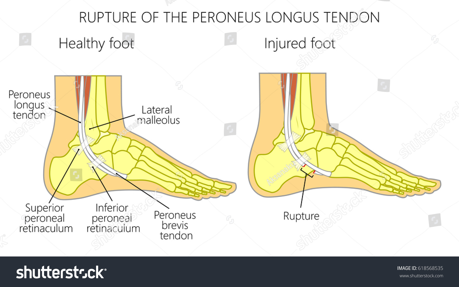 hight resolution of vector illustration of peroneal tendon injuries rupture of the peroneus longus tendon lateral ankle