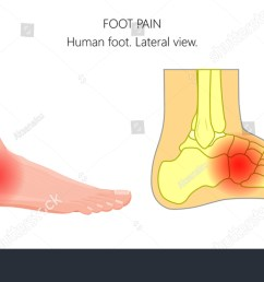 vector illustration of unhealthy human foot with midfoot pain or injury lateral or side view  [ 1500 x 850 Pixel ]