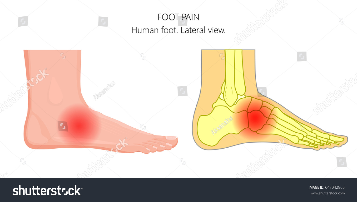 hight resolution of vector illustration of unhealthy human foot with midfoot pain or injury lateral or side view