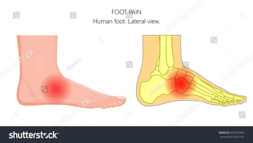 small resolution of vector illustration of unhealthy human foot with midfoot pain or injury lateral or side view