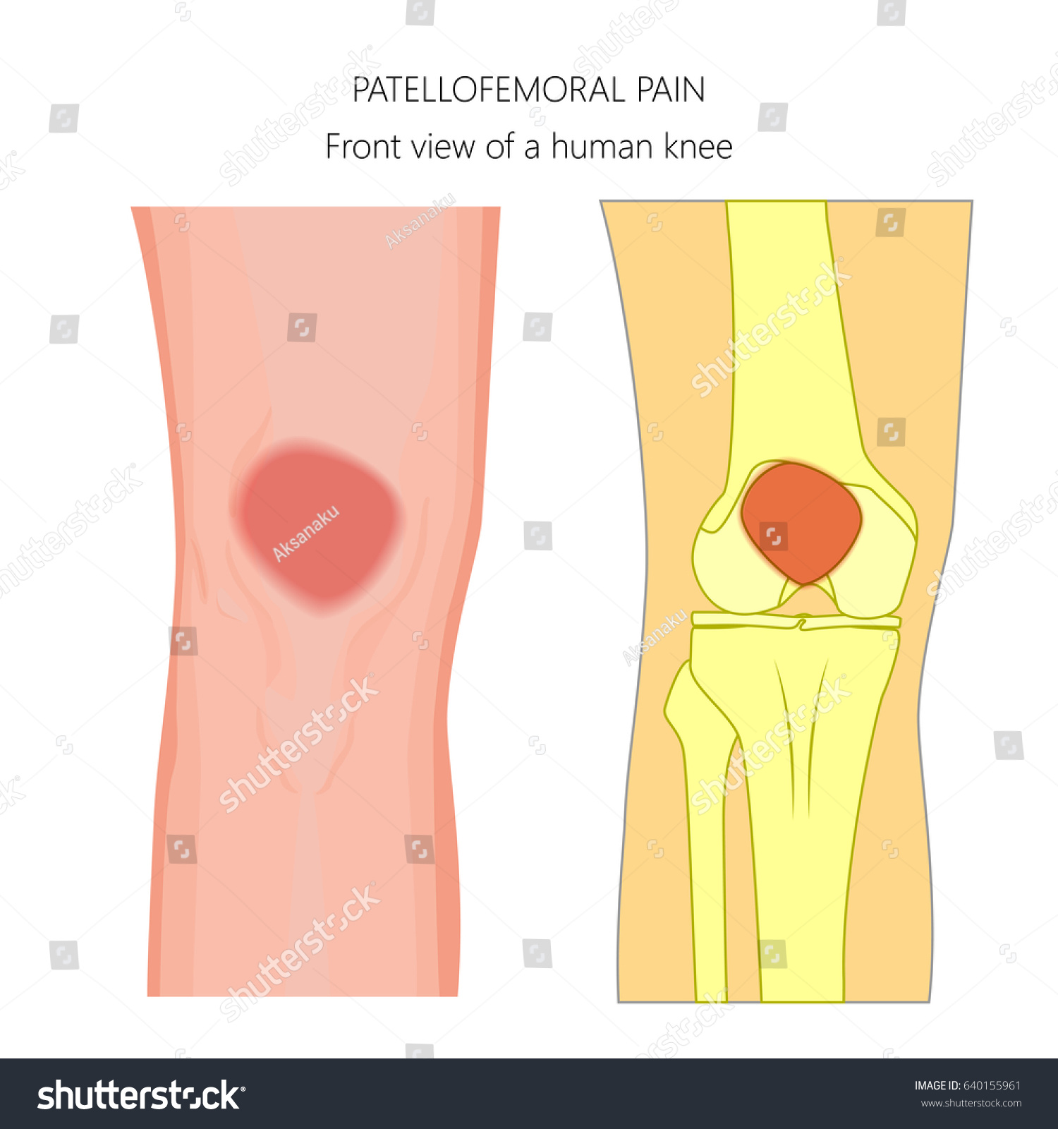 hight resolution of vector illustration of unhealthy human knee joint with patellofemoral pain anatomy of the knee front view of the knee for advertising and other medical