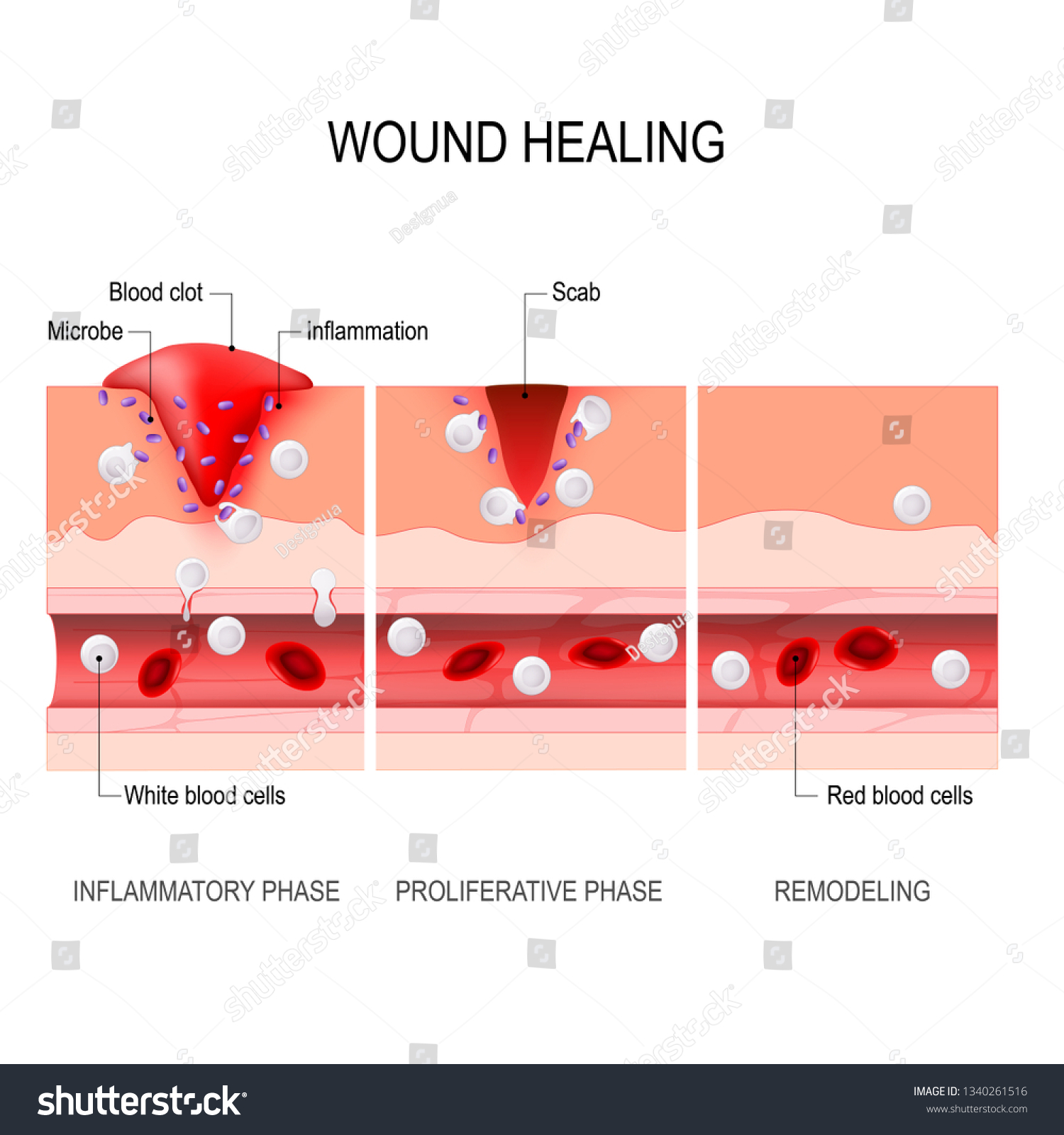 hight resolution of wound healing process hemostasis inflammatory proliferative maturation and remodeling tissue injury