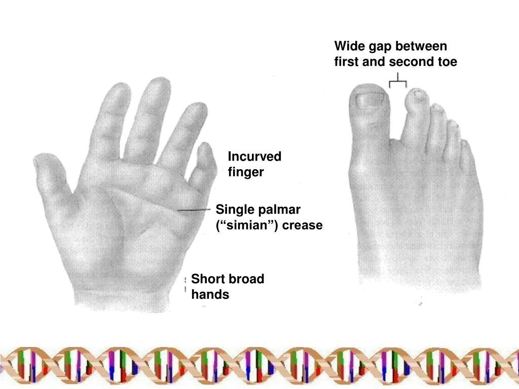 PPT - Karyogram and karyotype PowerPoint Presentation ...