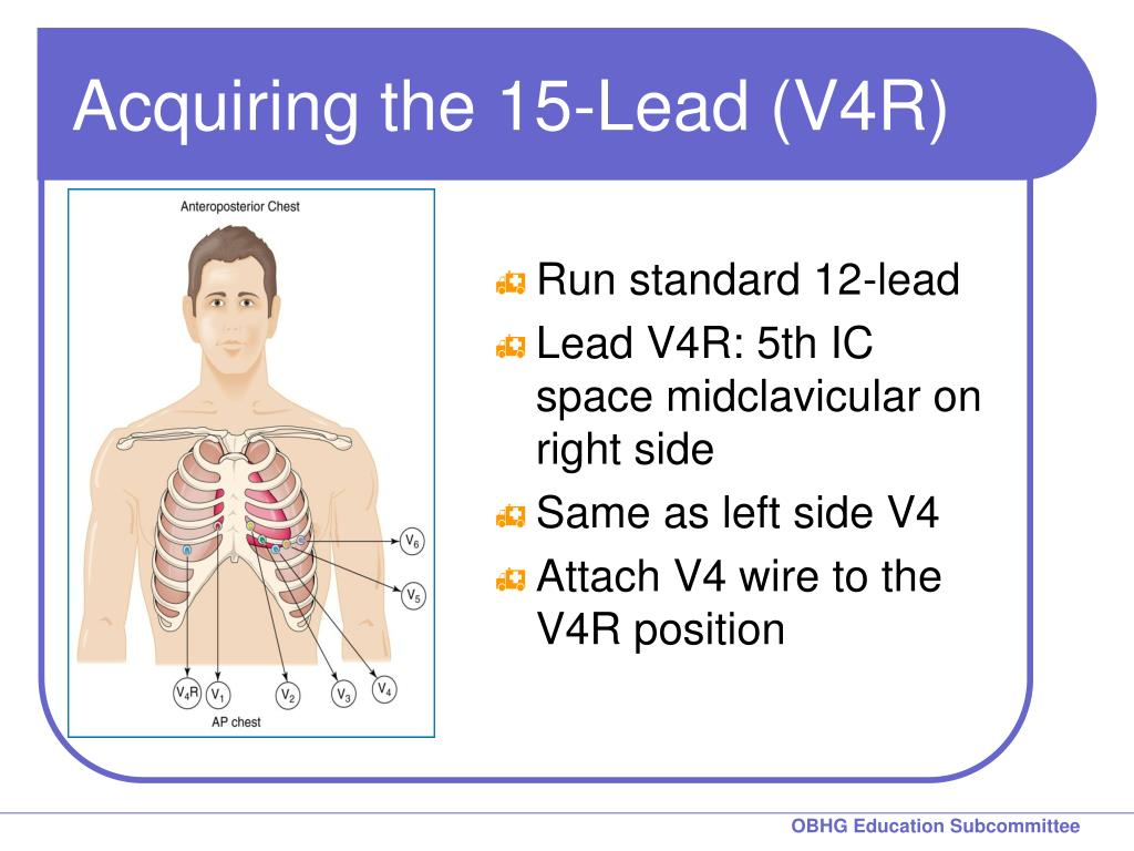 pediatric ekg lead placement diagram animal vs plant cell ppt chapter 8 for 12 training the 15 ecg