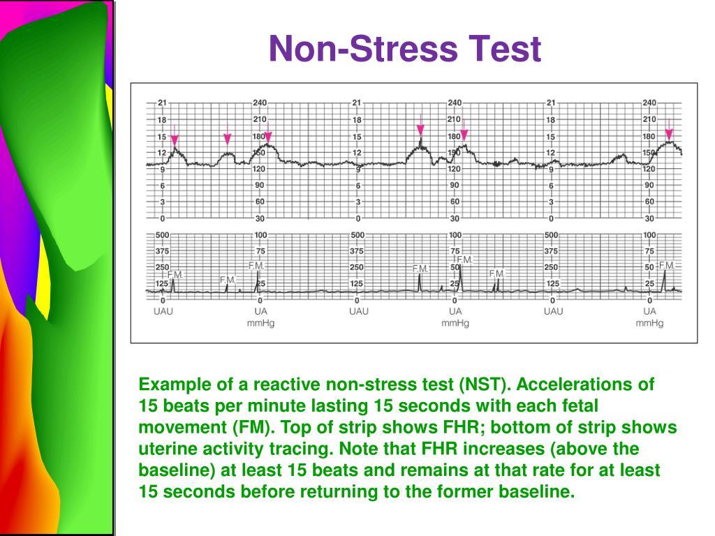 Non Stress Procedure Fetal Test
