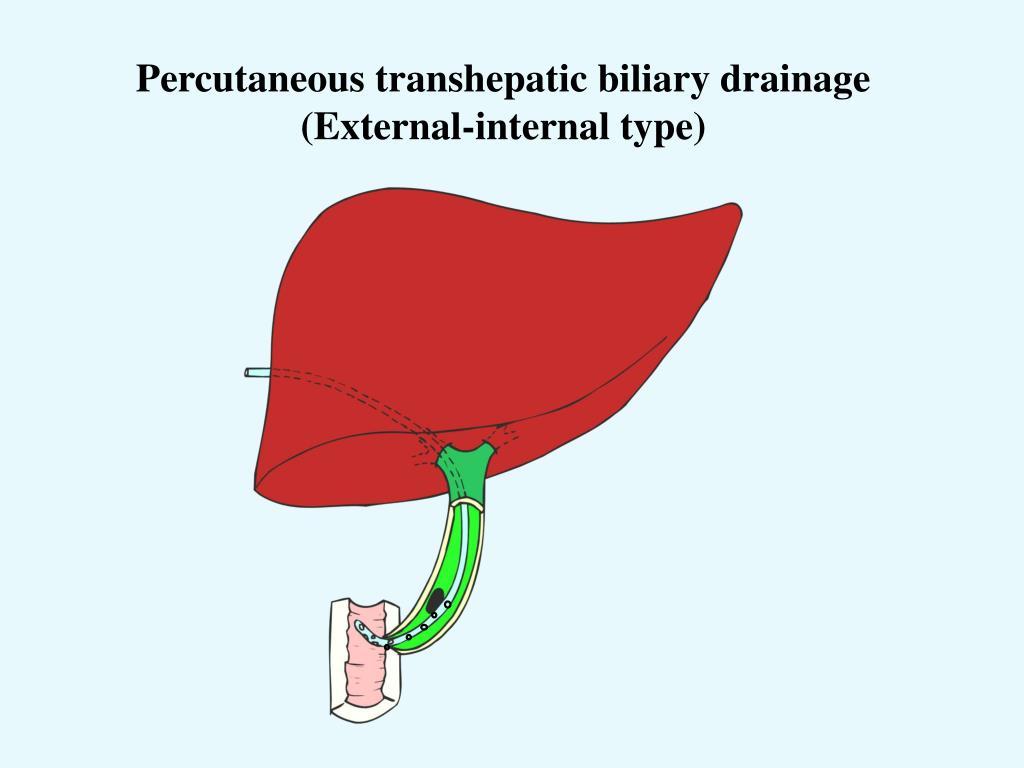 Types Drains Percutaneous