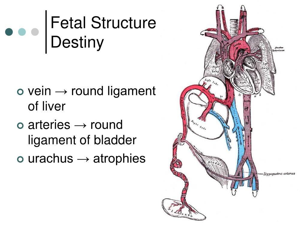 Umbilical Hernia Anatomy
