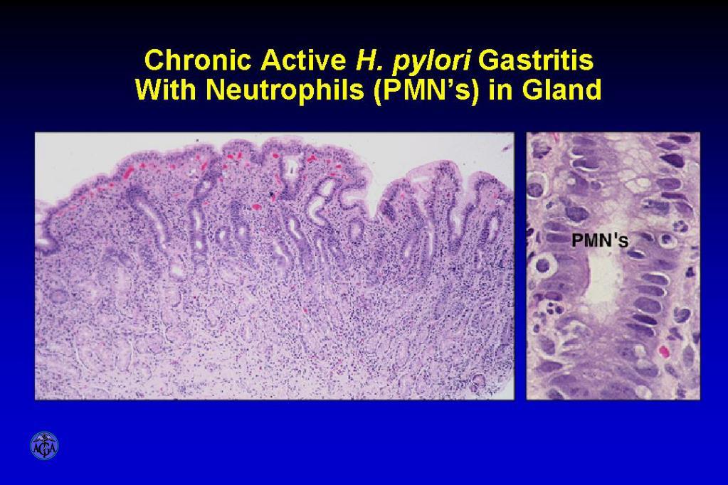 PPT - Hemorrhagic and Erosive Gastropathy - Endoscopy and ...