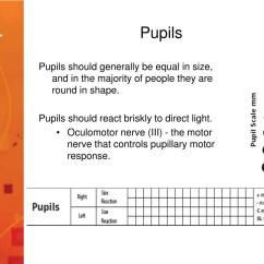 Pupil Size Diagram 01 Nissan Altima Wiring Ppt Emergency Care And Interventions Neurological
