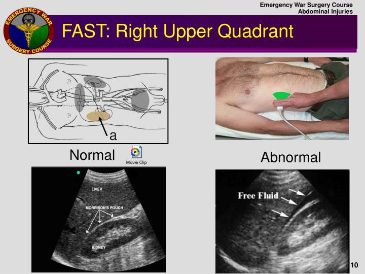 PPT - Abdominal Injuries PowerPoint Presentation - ID:976451