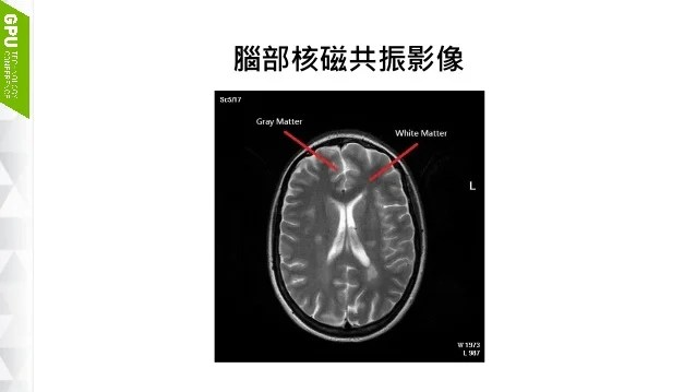 圖形處理器於腦部核磁共振影像處理應用