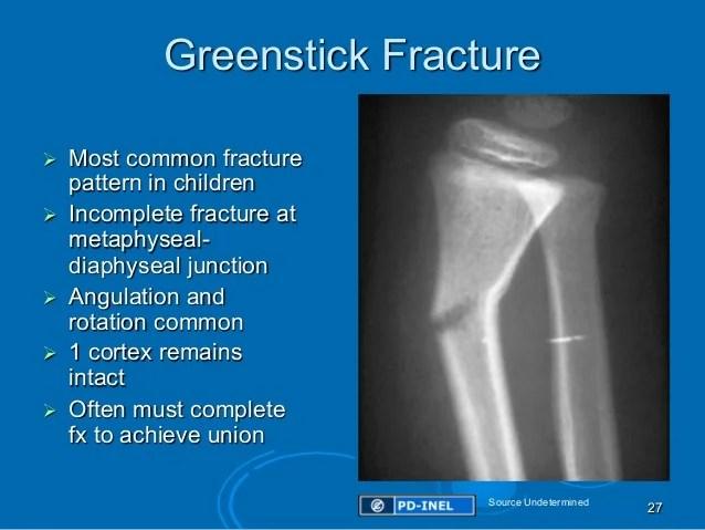 GEMC: Pediatric Orthopedic Emergencies: Resident Training