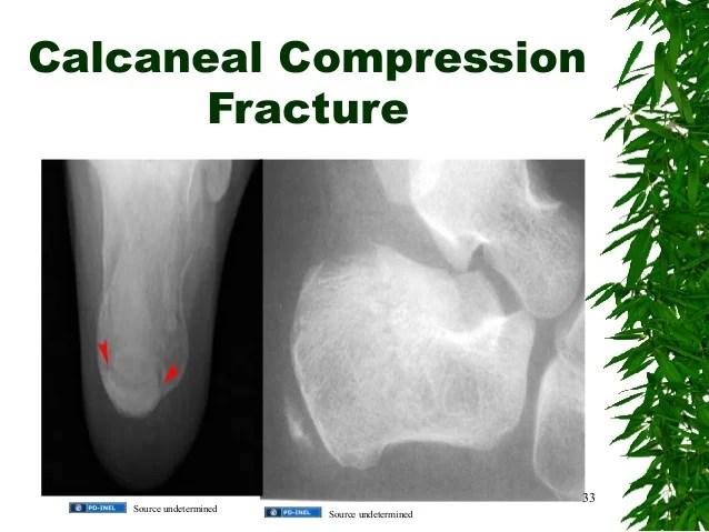 Jones Fracture Vs Avulsion Fracture