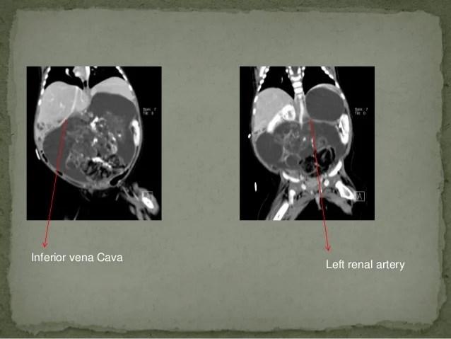 在嬰兒後腹腔發現的巨大畸胎瘤
