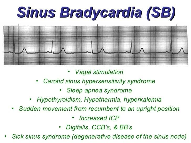 Sinus Rhythms - BMH/Tele