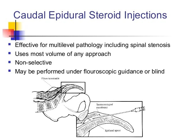 Lumbar Steroid Injection