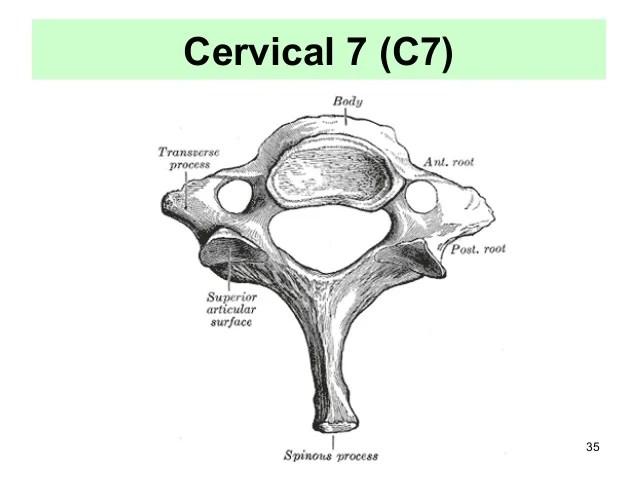 cervical vertebrae diagram 700r4 tcc wiring 3 5 vertebra hermizan halihanafiah 35 7 c7