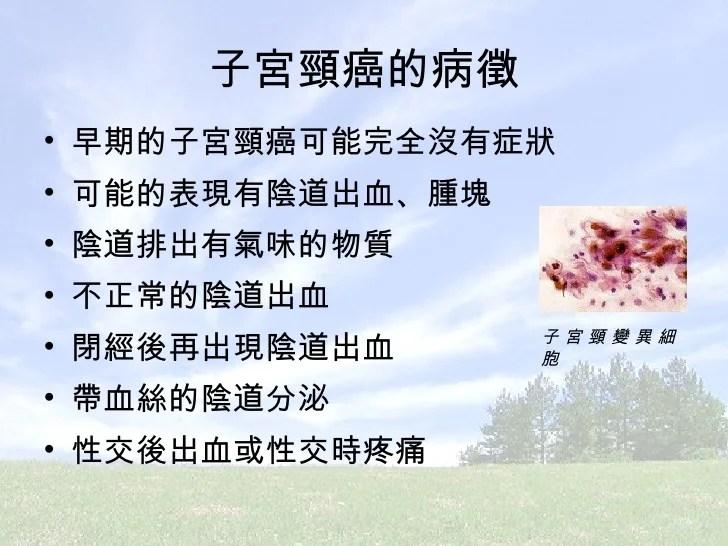 08093B子宮頸癌