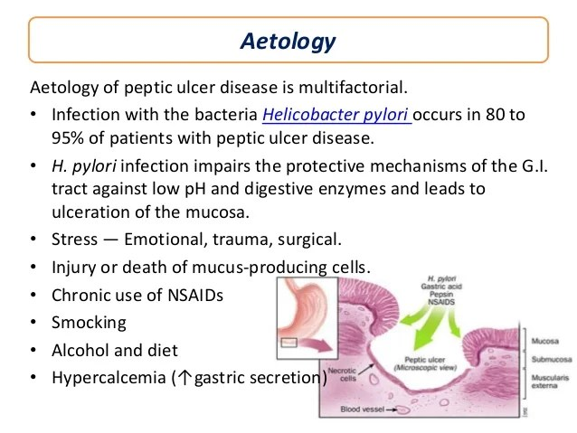 pathophysiology of peptic ulcer disease diagram peg perego gator wiring duodenal pain location heart attack ~ elsavadorla