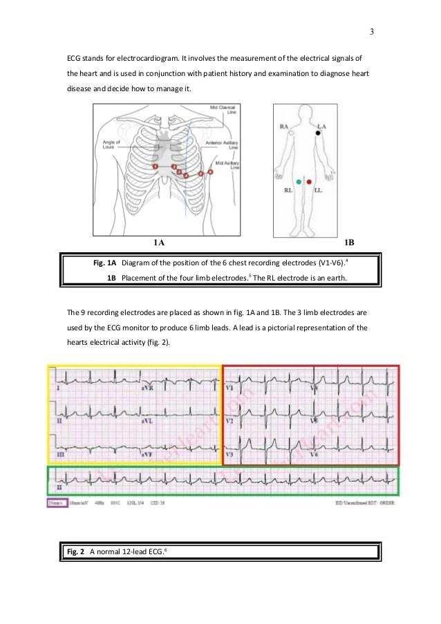 A Student's Guide to ECG Interpretation