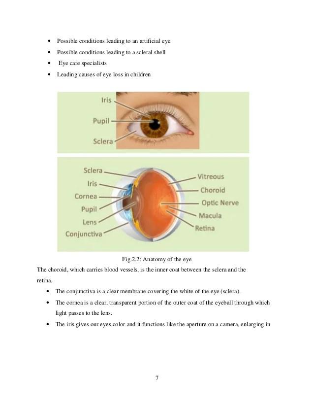 diagram of artificial eye jeep cherokee wiring diagrams aartificial seminar full report orbital implants 7
