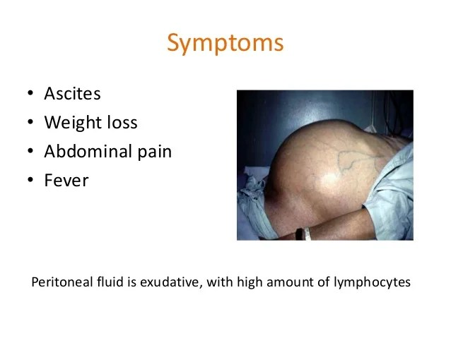 Retroperitoneal Pain Symptoms