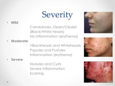 Image result for acne classification mild moderate severe