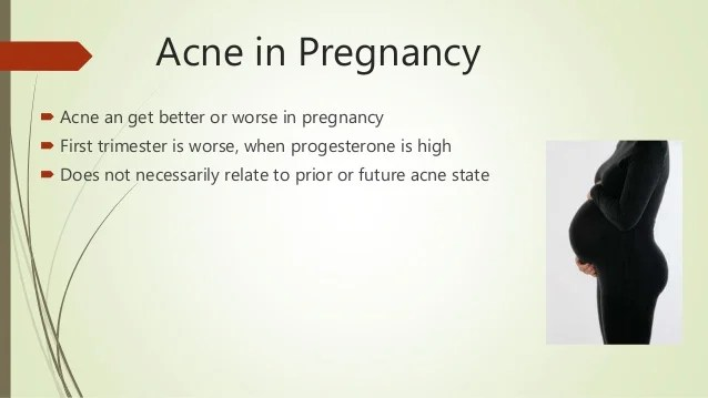 Acne presentation