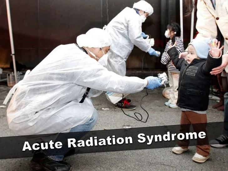 Acute Radiation Syndrome Reddit