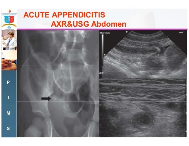 Acute right iliac fossa pain- the commonest surgical emergency