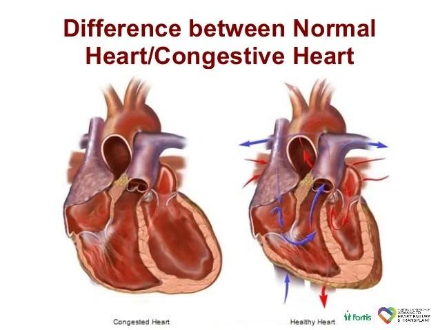 2 way vs 3 valve 2017 toyota hilux trailer wiring diagram advanced heart-failure-treatment-options