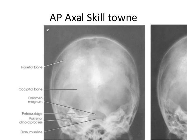 Towne Projection Radiography Pictures to Pin on Pinterest