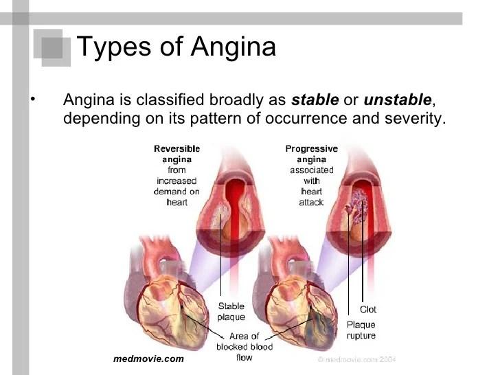 https://i0.wp.com/image.slidesharecdn.com/anginapectorispresentation-110122153823-phpapp01/95/angina-pectoris-presentation-10-728.jpg