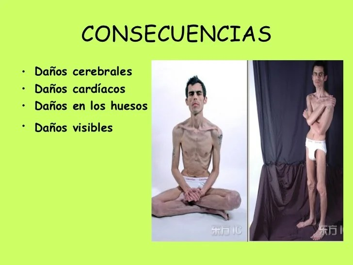 Anorexia y Bulimia Michelle Rodriguez y Carmen Ferre.