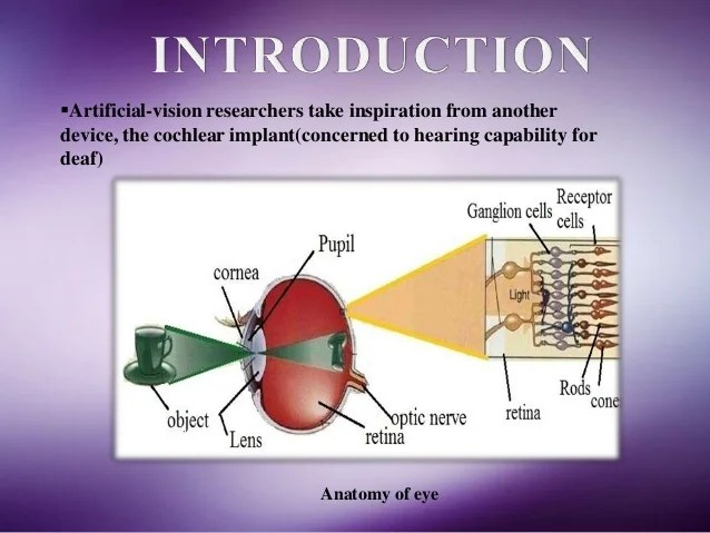 diagram of artificial eye earthquake with labels vision