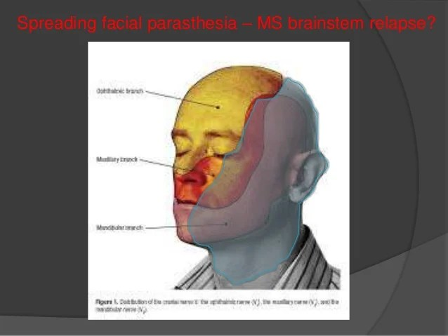 Atypical Headaches for GP Event March 2015 - JG
