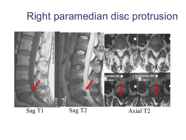 Backache imaging presentation