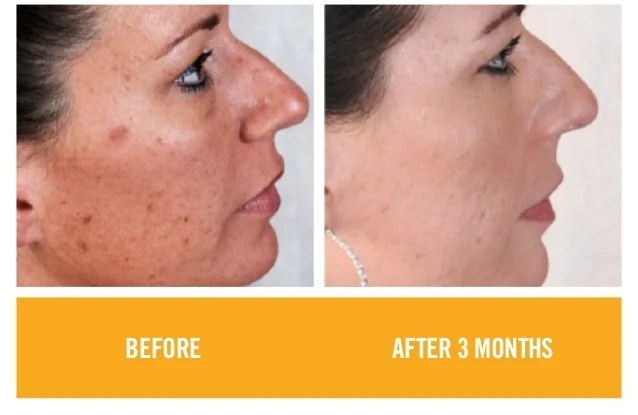 Image result for rodan and fields before and after